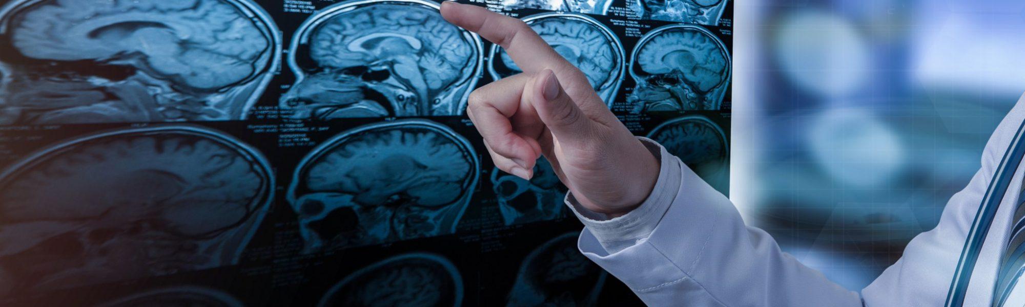 MS-Behandlung in der Neuropraxis Nürnberg